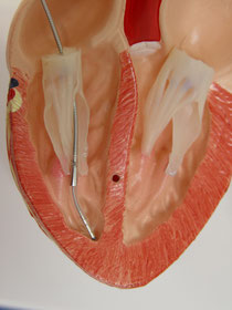 Lage der Schrittmacher-Elektrode im Herzen