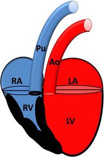 Valvuläre Pulmonalstenose mit Hypertrophie des rechten Ventrikel; RA: rechtes Atrium; RV: rechter Ventrikel;  Pu: Pulmonalarterie; LA: linkes Atrium; LV: linker Ventrikel; AO: Aorta