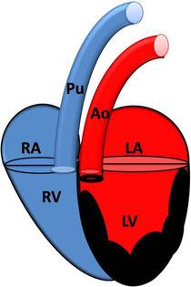 Subaortenstenose mit Hypertrophie des linken Ventrikel; RA: rechtes Atrium; RV: rechter Ventrikel ; Pu: Pulmonalarterie; LA: linkes Atrium; LV: linker Ventrikel; AO: Aorta