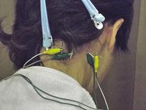 頑固な首のコリは、深部の筋肉が原因