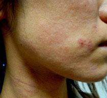 アトピーアレルギー整体