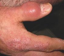 尋常性乾癬整体院