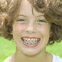歯周病歯肉炎