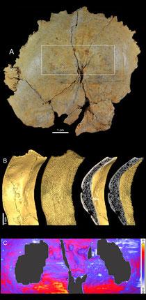 Analyses des structures internes de l'os occipital de l'enfant néandertalien La Ferrassie 8