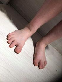 Knick-Senkfüße (Bilder wurden von einem netten Berufskollegen zur Verfügung gestellt)