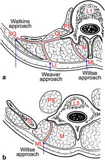 Approcci mini invasivi del tratto lombare