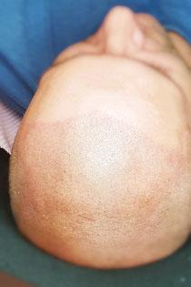 Pigmantacja głowy