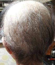 抗がん剤投与中の頭髪