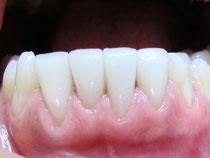 Veneers der unteren vier Schneidezähne (Aufnahme 4 Jahre nach dem Einsetzen): Das Zahnfleisch ist hell rosa und gesund.