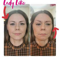Studio LadyLike Victoria kann verpeiltes Permanent Make-up ausbessern. Hier ist eine Tattoo-Entfernung notwendig, bevor die neuen Augenbrauen gezeichnet werden können.  Hier auf dem Foto kann man deutlich sehen, warum die meisten Studios nur EINE Augenbraue fotografieren; weil das Zeichnen spiegelverkehrt-gleichen Augenbrauen sehr schwierig und höchste Kunst ist.  Die Symmetrie ist aber sehr wichtig für das Auge, nur so kann es die Frau als schön und jüng wahrnehmen.  Diese Metamorphose hat der Kundin direkt 5 Jahre von Gesicht gewischt. 🌹 Studio LadyLike Victoria verwendet keine Schablonen, jede Kundin erhält individuelle typgerechte Augenbrauen!  Typ-Beratung im Studio LadyLike Victoria ist immer kostenlos!  www.lady-like-victoria.de +4815128888843 🌹  Permanent Makeup * Maquillage * Татуаж * Photography * Image * Consulting  www.lady-like-victoria.de ♥️LadyLikeVictoria ist ein spezialisiertes Studio für Permanent Makeup / Make-up in Wuppertal♥️ Diese Spezialisierung erlaubt absolute Konzentration und als Resultat höchste Qualität der PMU-Arbeit: Augenbrauen, Lid, Lippen - Pigmentierung und Microblading♥️ ♥️Zertifizierte Expertin bietet Ihnen eine kostenlose Typ-Beratung an♥️ Wir machen auch Tattoo-Entfernung♥️ In der Zeit der PMU-Abheilung betreuen wir unsere Kunden sehr intensiv und stehen auch später zur Verfügung♥️ Unsere Kunden sind sehr zufrieden, s. unsere Kunden-Bewertungen♥️ ♥️Bitte kommen Sie zur unverbindlichen Beratung ins Studio! Bitte einfach anrufen! Termine nur nach telefonischer Vereinbarung♥️ +4915128888843  #wuppertal #wuppertalelberfeld  #Puschkin  #Victoria #victoriaPuschkin #ladylike  #ladylikevictoria #Temine #nützenbergerstraße299 #microblading #pmu #татуаж #lippen #levres #lips #augenbrsuen #eye #eyebrows #EYELINER #augenbrauen #tattooremoval