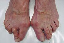 Füße mit einigen Kilometern Laufleistung