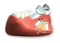 Borsten mit ca. 45 Grad Richtung Zahnfleisch ansetzen (© proDente e.V.)