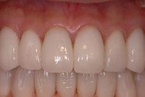 セラミックの歯