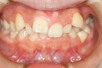 歯並び治療前