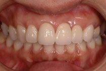 審美歯科のオールセラミック