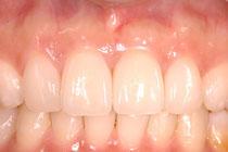 歯周病とセラミック