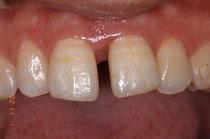 歯周病ですきっ歯になっています