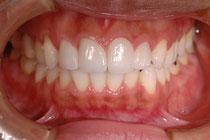 審美歯科 正中のずれの治療