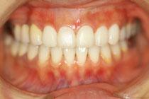 1回目の仮歯