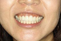 前歯の仮歯