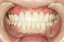 仮歯の形の修正