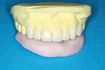 模型上の仮歯で形の確認