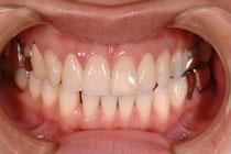 セラミックの歯 東京
