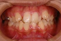 審美歯科 歯並びを変えたい