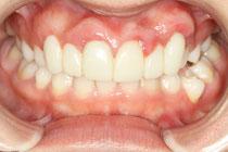 歯茎の整形、再生