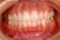 審美歯科 正中のずれを治療