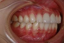 前歯2本の出っ歯の治療例