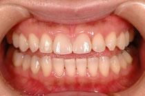 東京の審美歯科でオールセラミック