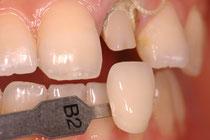 審美歯科の色合わせ