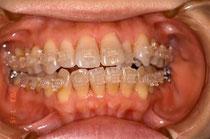 審美歯科治療 東京の銀座しらゆり歯科