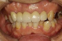 歯茎整形後