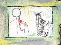 Triggerpunkt der Schultermuskulatur