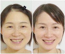 before       →      3ヵ月後