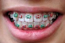 Zahnkorrekturen sind teuer.