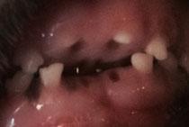 Leider ist das Bild nicht wirklich gut. Die Zähne kann man aber erkennen.
