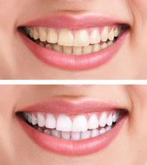 schöne Zähne, gelbe Zähne, weisse Zähne, dunkle Zähne, Verfärbung vorher nachher