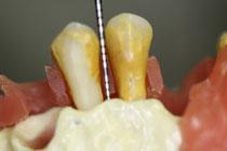 歯周病の検査