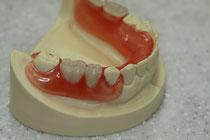 金属を使用しない入れ歯