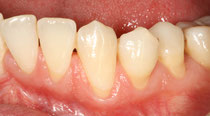 Récessions gingivales multiples