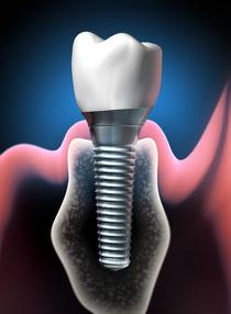 Implantologie Weiden Zahnimplantate: Schraubenförmige Wurzel im Kiefer mit Keramikkrone