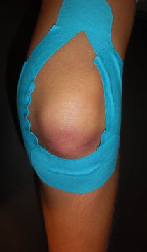 Knie- Taping bei Stauchung/Prellung