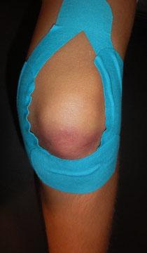 Knie- Taping bei Stauchung/Prellung