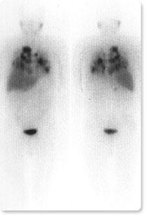 MIBG-Szintigraphie bei Phäochromozytom