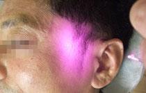 顎関節症治療にレーザー