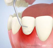 歯周病の基本的な検査