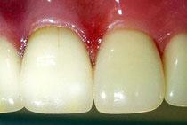 自然なセラミックの歯
